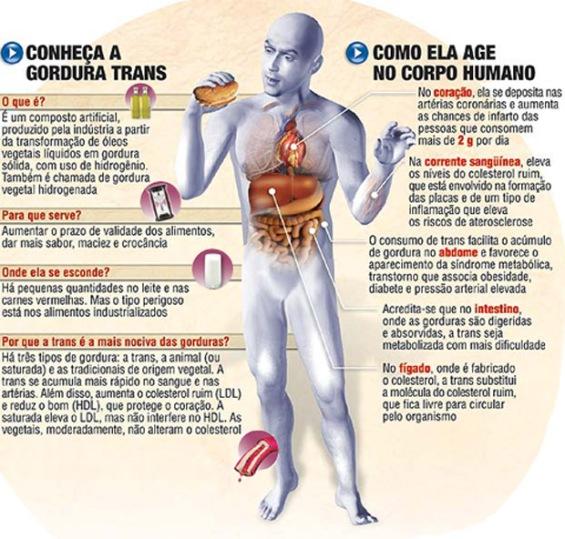 gordura-trans-infografico